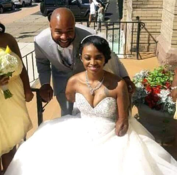 Man marries beautiful lady without hands and legs