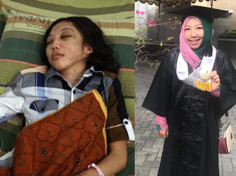 Four years after she was brutally tortured, starved by her employer, domestic worker graduates with top honours from university