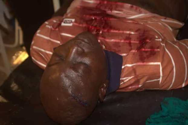 Photos: One killed, former chairmanship aspirant, many others injured by hoodlums during Lagos APC primary