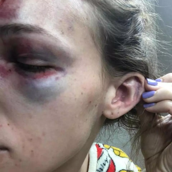 Photos of horrific injuries inflicted on a woman by her boyfriend because she posted cleavage-baring photo on Instagram