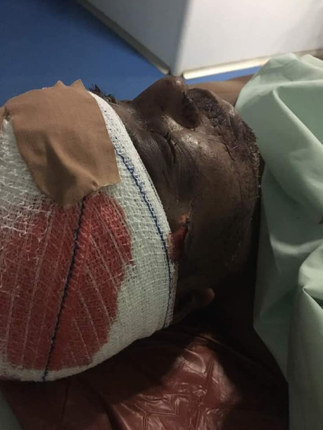 Man who survived an assassination attempt on him by his security guard gives a shocking detail of how the attack unfolded