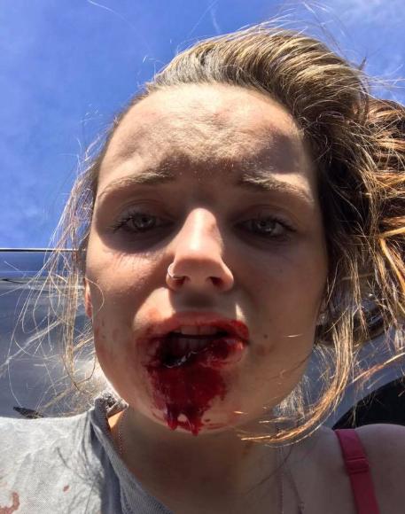 Man bites off girlfriend