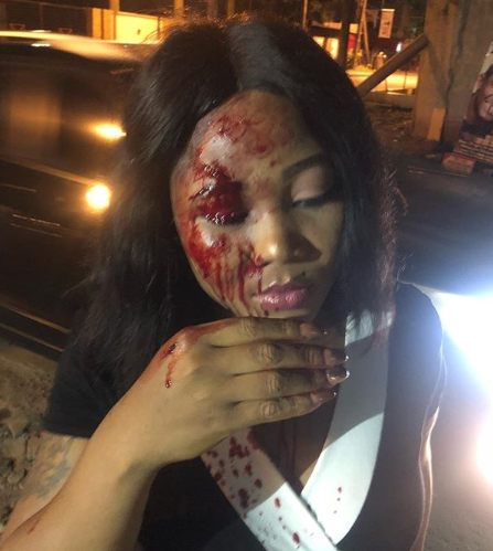 Photo/Video: Nigerian lady left with serious injury after she was allegedly attacked by her taxify driver in Lagos