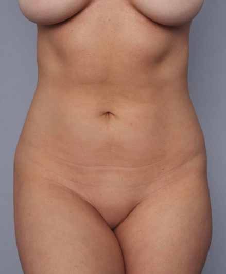 Kim K shares naked photos of women of various shapes, sizes, and color to promote her product and people say she