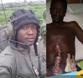 Photos: Nigerian soldier in critical condition after hospital carries out wrong surgery on him