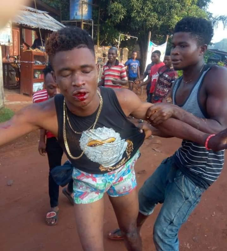 Young man killed by mob after he and his accomplice were allegedly caught stealing iPhone 6 and laptop (graphic video/photos)