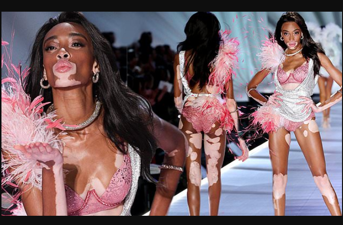 Winnie Harlow makes history as first model with vitiligo to walk the runway at Victoria