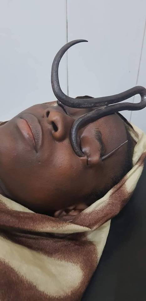 Doctors rescue little girl after Iron hook passed through her eyes (graphic photos)