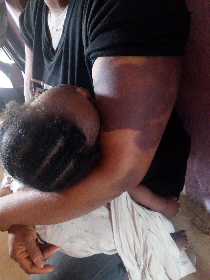 Photos: Nursing mother whose husband beats with chains and rapes in their matrimonial home in Lagos seeks help