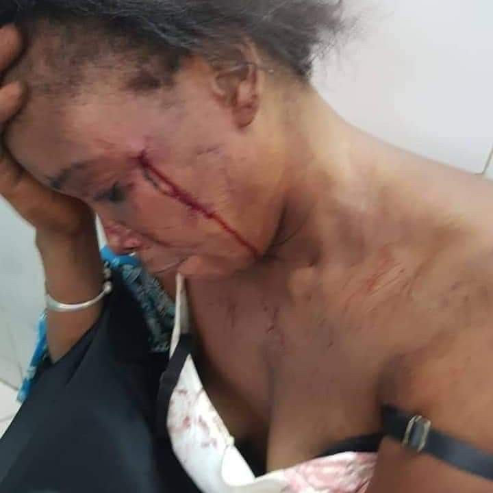 See how a man battered his wife for refusing to have sex with him (graphic photos)