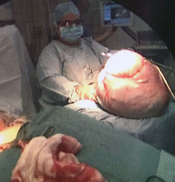 See what doctors found in the tummy of a woman they thought was pregnant with multiple babies