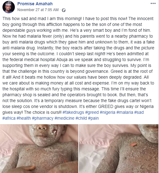 "Child suffers severe reaction after taking ""fake"" anti-malaria drugs (photos)"