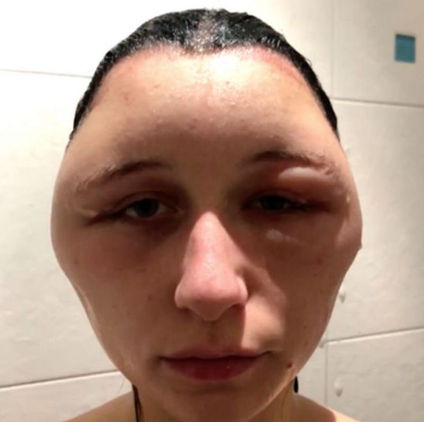 Teenager's head doubles in size, Teenager's head doubles in size after she suffers reaction to a hair dye, Latest Nigeria News, Daily Devotionals & Celebrity Gossips - Chidispalace