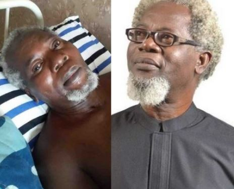 Two years after, Nigerian actor Victor Olaotan still needs money to travel abroad over?possibility of his two legs being amputated