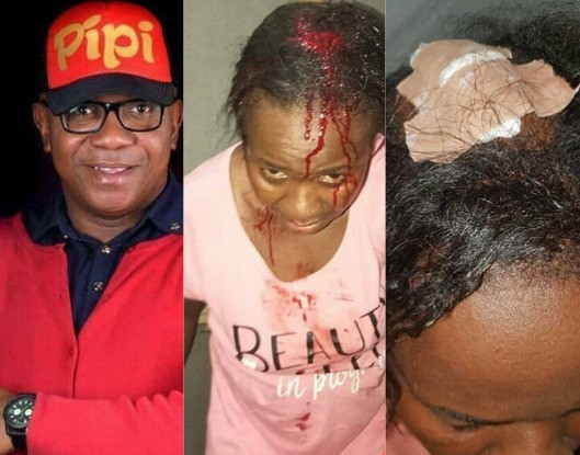 Photos: Man allegedly batters wife after she caught him cheating