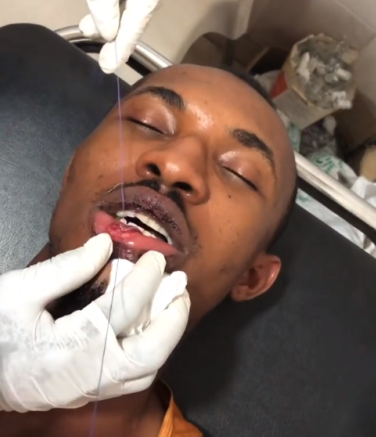 Gideon Okeke gets his lips stictched after allegedly being brutally attacked by policemen and LASTMA officials in Lagos (video)