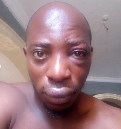 Nigerian gospel artist survives ritualist attack (photos)