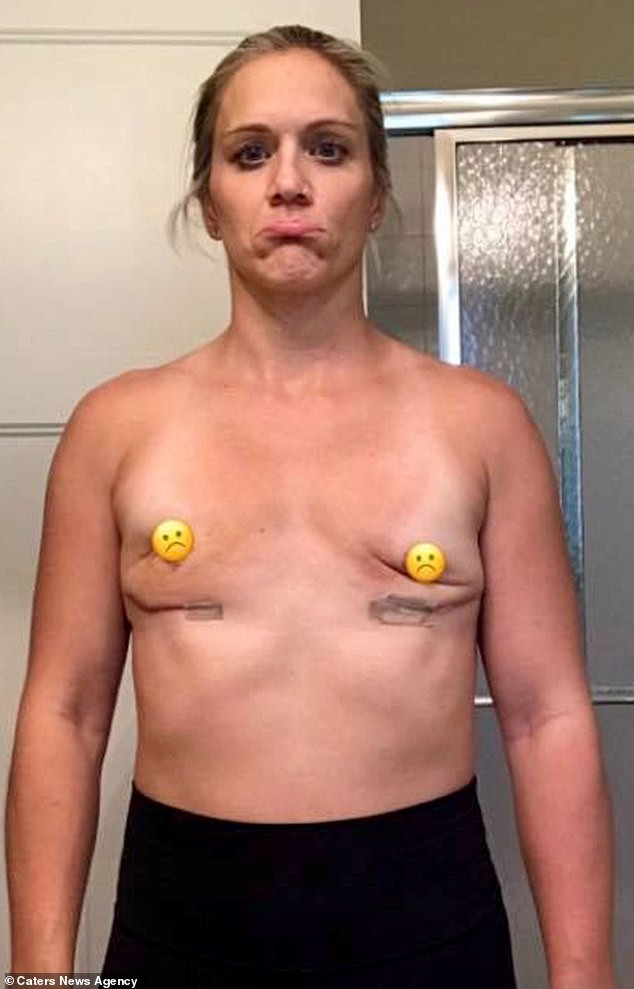 Mother of two shows what her boobs now looks like after she removed her C-cup breast implants due to health issues (Photos)