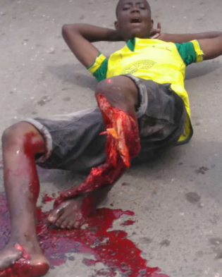 Man begs God to take his life as his leg is crushed in an accident in Ajah while selling bread to cater for his pregnant wife (graphic photos/video)