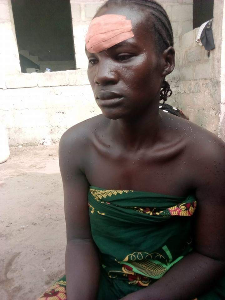 Photos/Video: Man brutally beats wife in Lagos leaving her drenched in blood but she wants to settle the matter within the family
