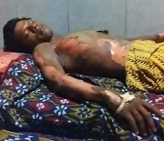 Wife burns her husband alive because he refused to give her his phone
