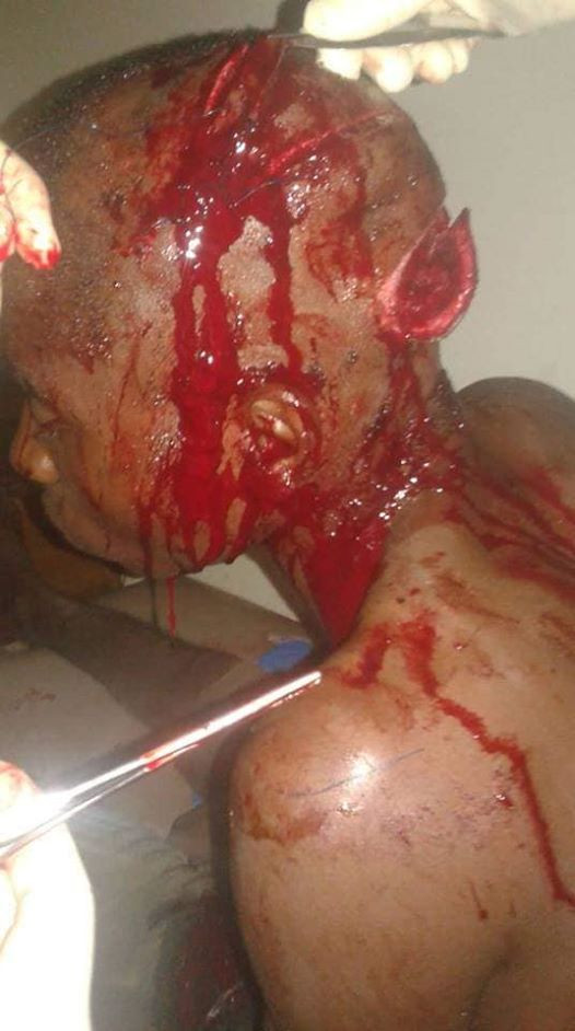 Graphic: See what criminals did to a young man just to steal his motorcycle