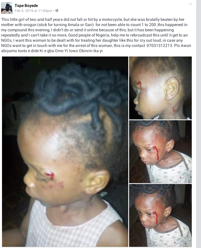Photos: 2-year-old girl allegedly beaten by her mother in Akure for not being able to count 1 to 200