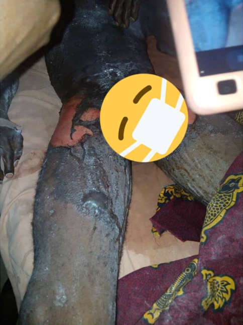 Woman pours boiling water mixed with pepper on her husband (graphic photos)