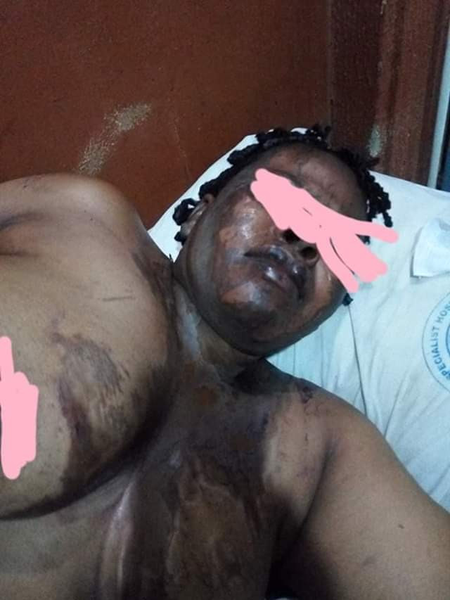 Graphic Photos: Man bathes wife with acid in Anambra, kills self,  because she named their son as next of kin on her land and house