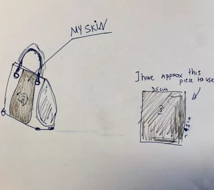 Woman plans to use the skin from her amputated leg to make a handbag