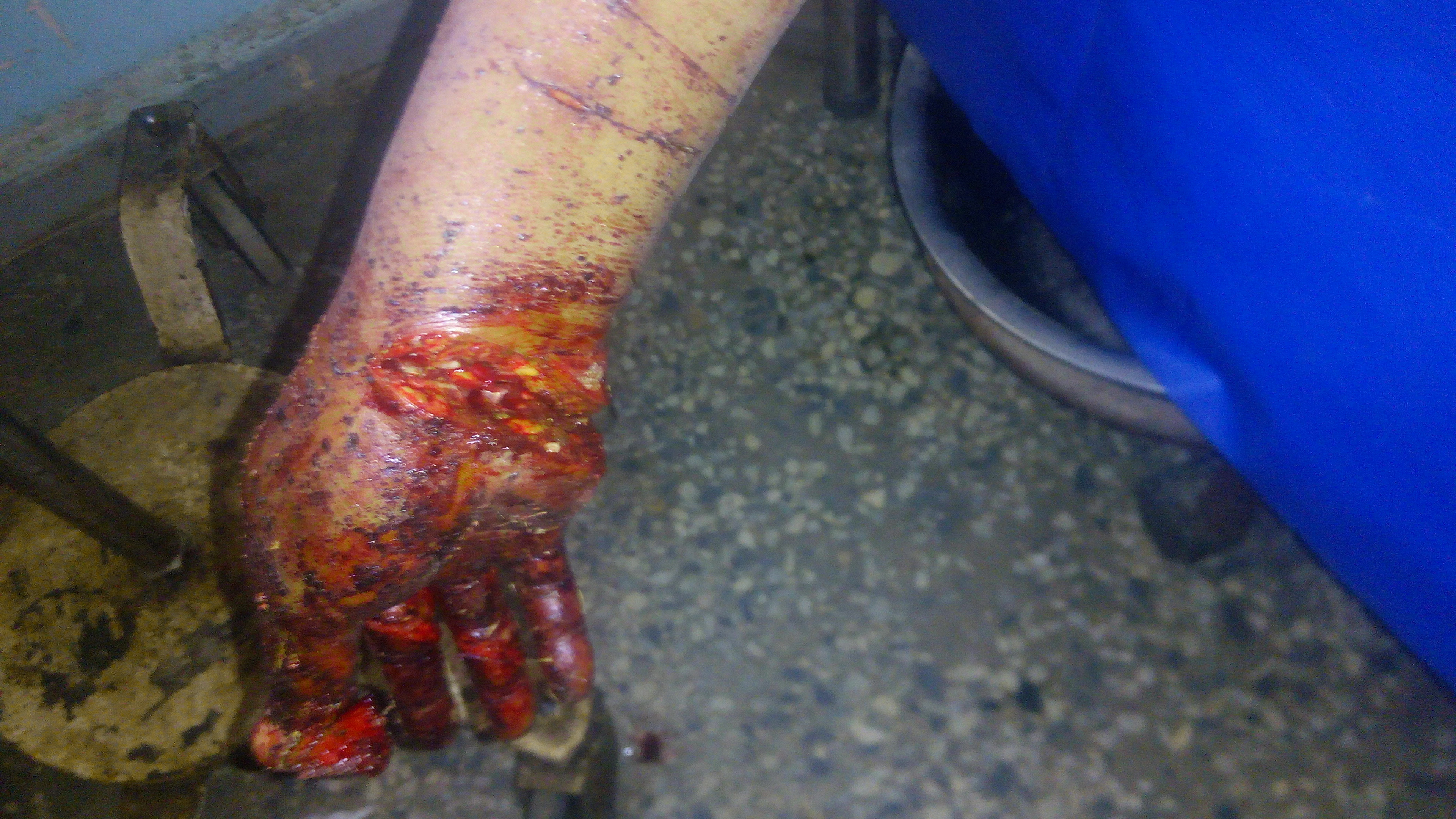 Graphic photos: Woman butchered by known persons in Abuja, her child abducted