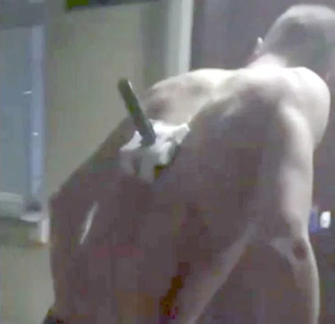 Man casually walks out of hospital with knife sticking out of his back (video)