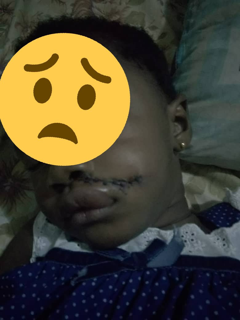 Man in shock after his niece returns home from school with deep cuts (photos)