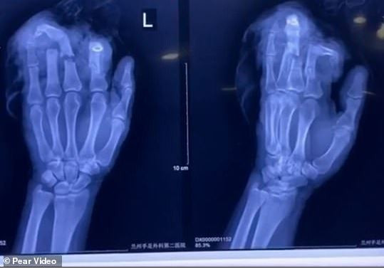 Angry Chinese man cuts off four of his fingers?during an argument with his wife