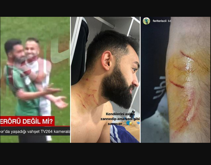 Turkish player is caught using a razor blade to attack opponents