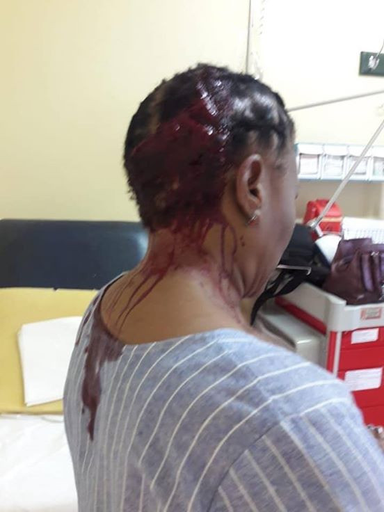 Photos: Teacher hospitalised after irate parent allegedly beat her with umbrella