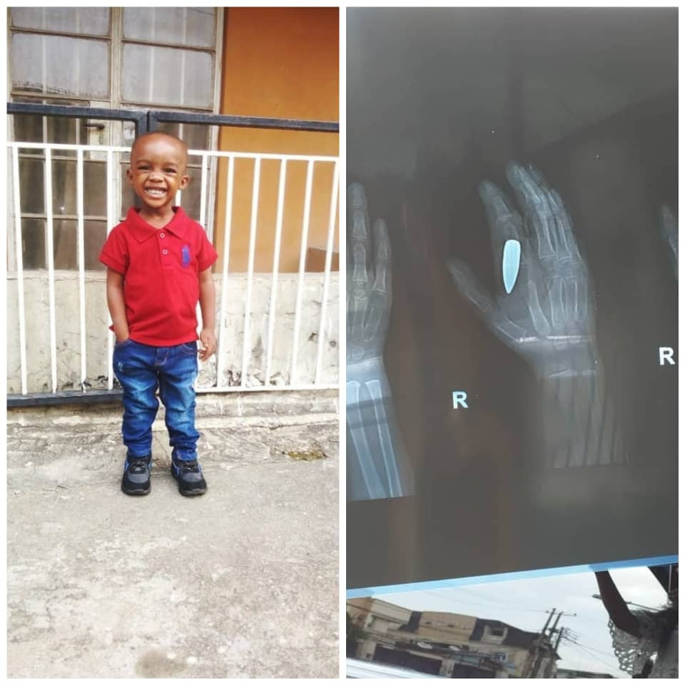 Nigerian man testifies of how God saved his young son who was hit by a stray bullet and only found out 28 days after