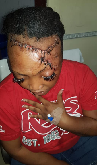 Woman who survived ghastly accident which split her head open shows off impressive transformation as she thanks God