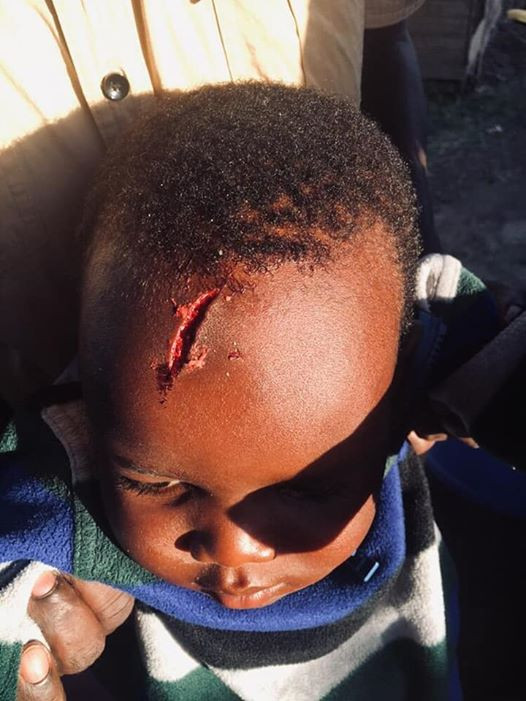 Photos: House help from hell smashes child?s head with glass plate, sprinkles salt on the wound and flees