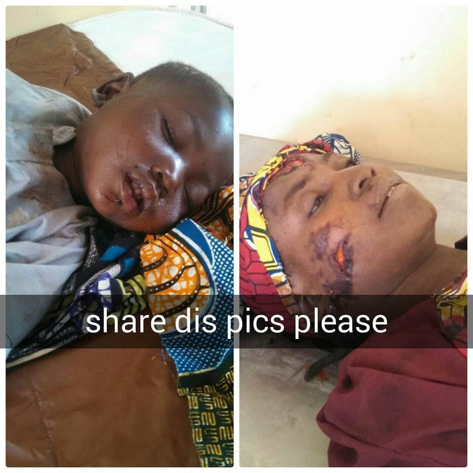 Kaduna hospital in search of family of little boy whose mother died in an accident while they were both traveling