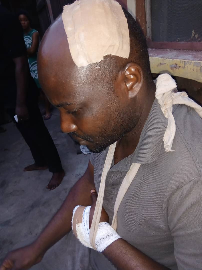 Photo Journalist attacked by armed robbers in Lagos (photos)