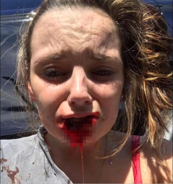 Man bites off ex-girlfriend