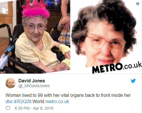 Woman lived for 99 years with her organs in all the wrong places and never knew about it