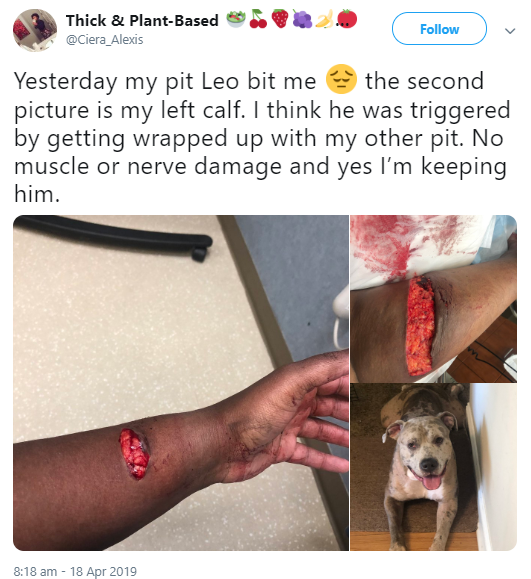 Pit bull inflicts horrific injury on its owner but she refuses to put it down (graphic photos)