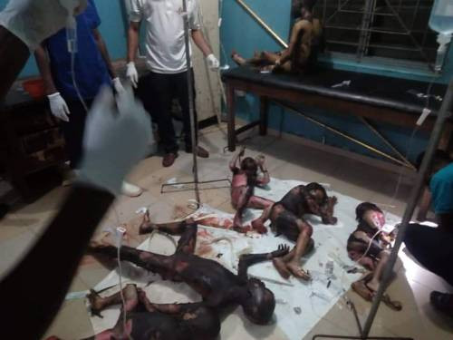Graphic photos of the children set ablaze by their sister