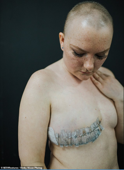 Cancer patients reveal their scars to show the public the