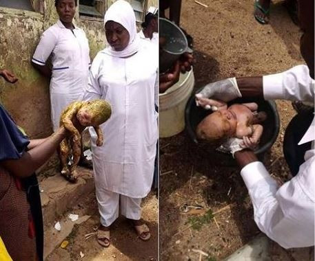 Hospital workers rescue newborn baby thrown inside a toilet in Bauchi State (Photo)