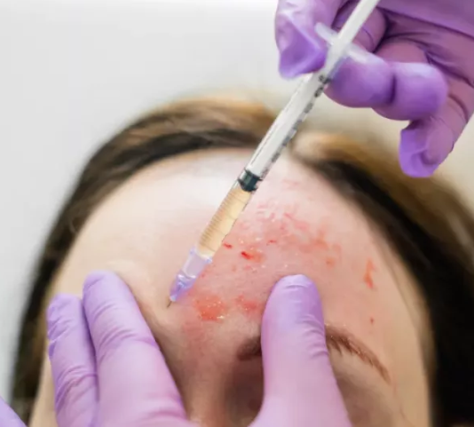 """Two people become infected with HIV """"after beauty salon used dirty needles for vampire facials"""""""
