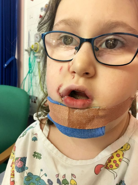 Autistic girl, 7, is permanently scarred after dog rips off her lip as she stroked it (graphic photos)