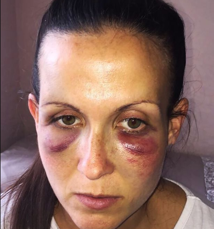 New mum brutally battered by husband three days after giving birth to their child